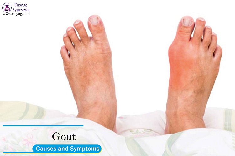 gout causes and symptoms