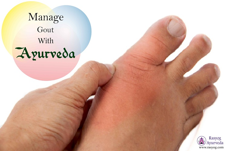 gout cure and medicine