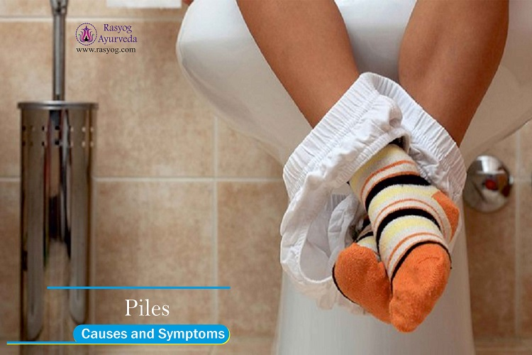 piles causes and symptoms